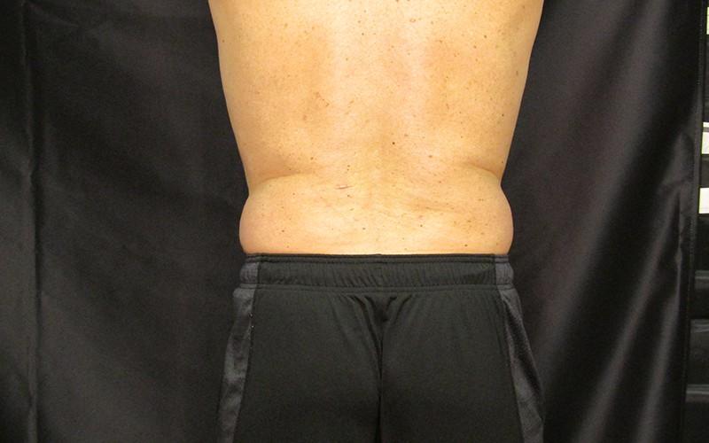 Patient 2 SculpSure Laser Fat Reduction Back Before Image