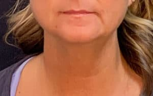 Patient 3 SculpSure Laser Fat Reduction Chin After Image