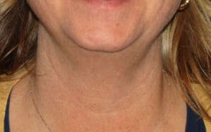 Patient 3 SculpSure Laser Fat Reduction Chin Before Image