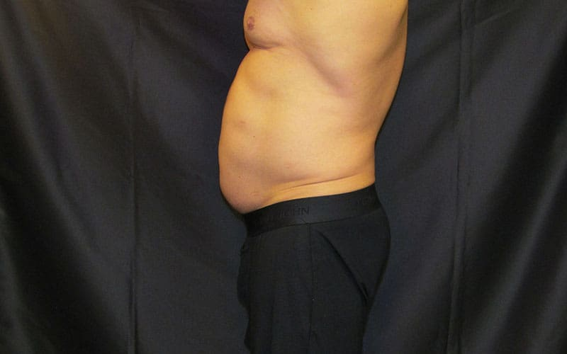 Patient 4 SculpSure Laser Fat Reduction Chin Before Image