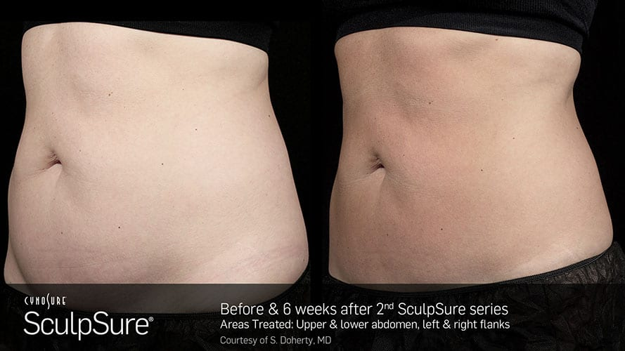SculpSure Abdomen Before and After Female 1