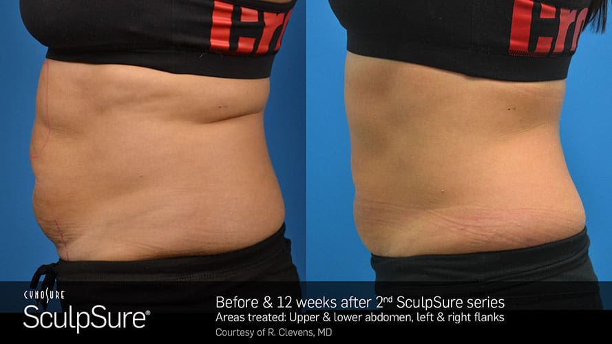 SculpSure Abdomen Before and After Female 13