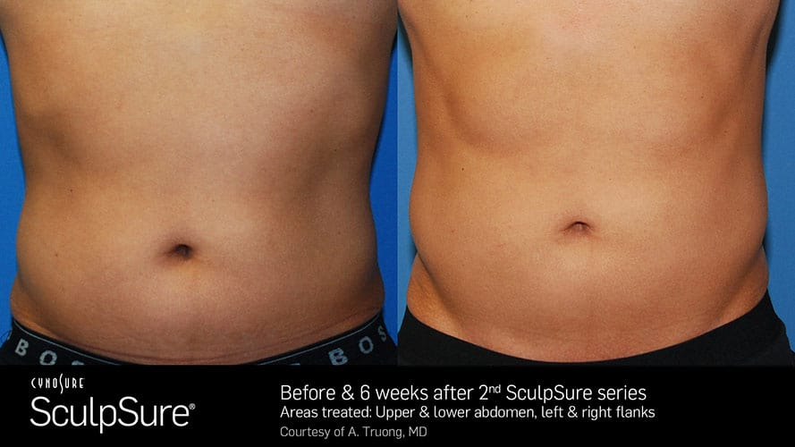 SculpSure Abdomen Before and After Male 3