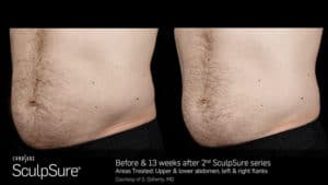 SculpSure Abdomen Before and After Male 6