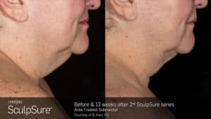 SculpSure Submental Chin Before and After Female 25