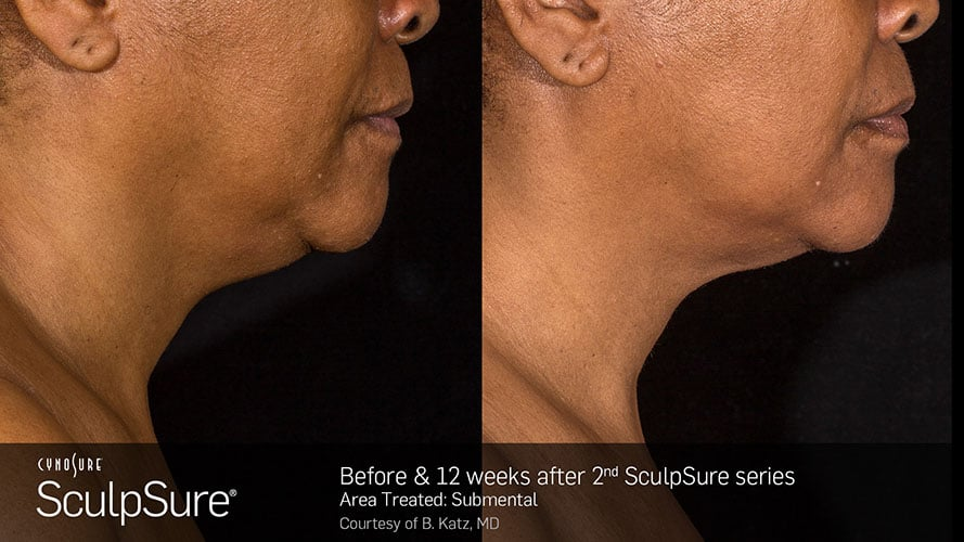 SculpSure Submental Chin Before and After Female 28
