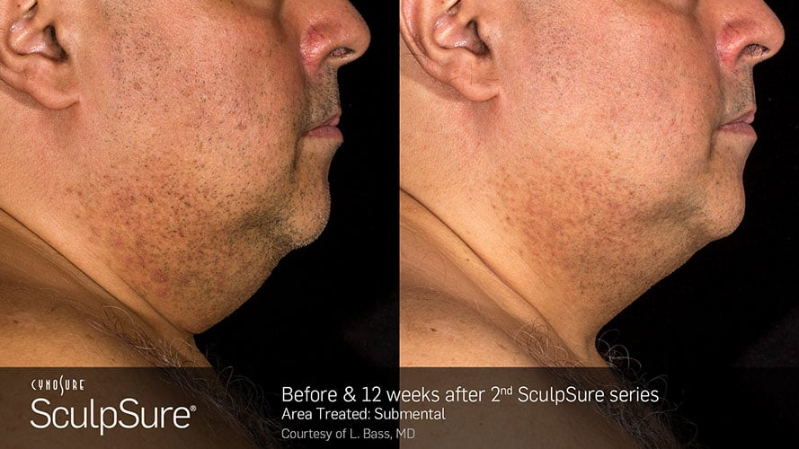 SculpSure Submental Chin Before and After Male 17