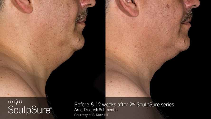 SculpSure Submental Chin Before and After Male 24